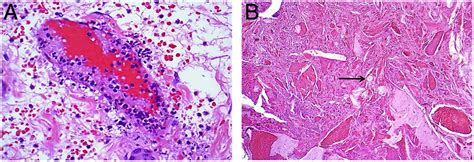 A pragmatic approach to vasculitis in the gastrointestinal