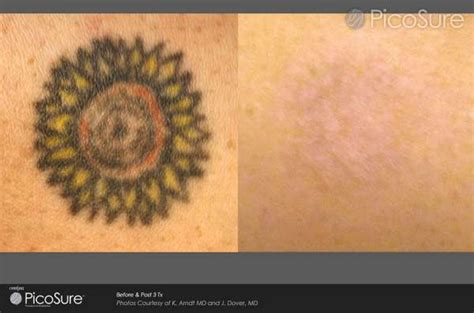 Laser Tattoo Removal | Before & After Photo Gallery