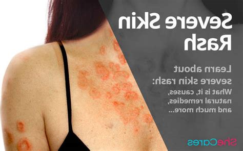 Top10: Treatment for infected psoriasis | Test & Advice