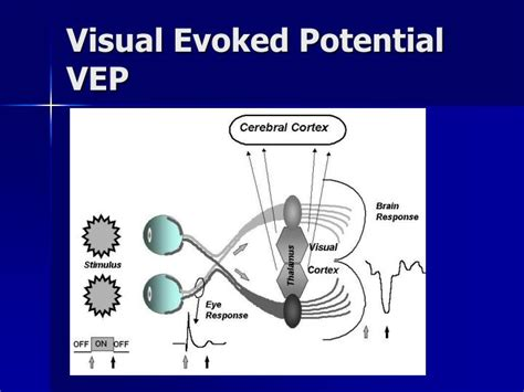 PPT - Visual Electrodiagnostic Testing-8 PowerPoint